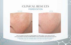 pigmentation-clinical-study-photos